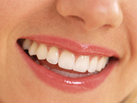 Spar penge på tandlægen!